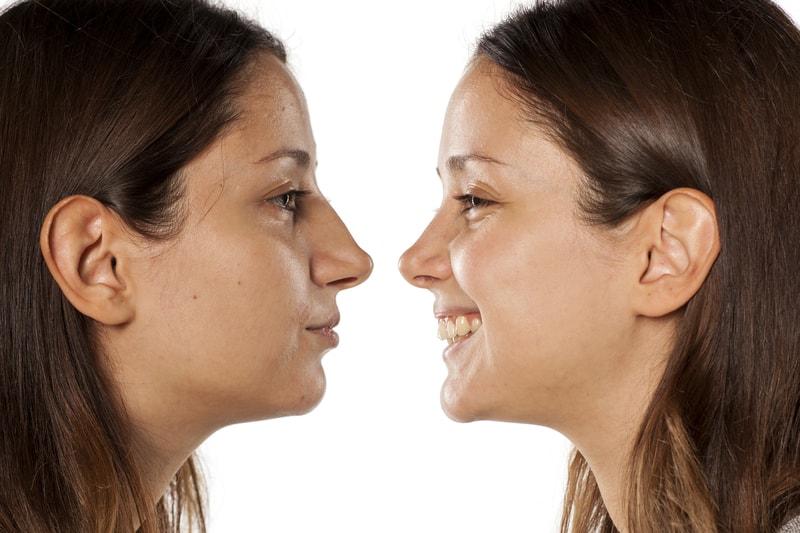 cirugia-los-maxilares-nariz-desviada-rinoplastia-medellin