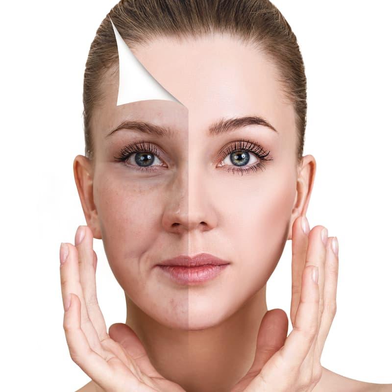 tipos-tratamientos-sin-cirugia-rejuvenecimiento-facial-medellin-min